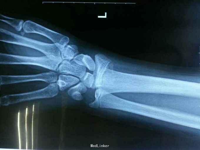 位 端 遠 骨折 橈骨