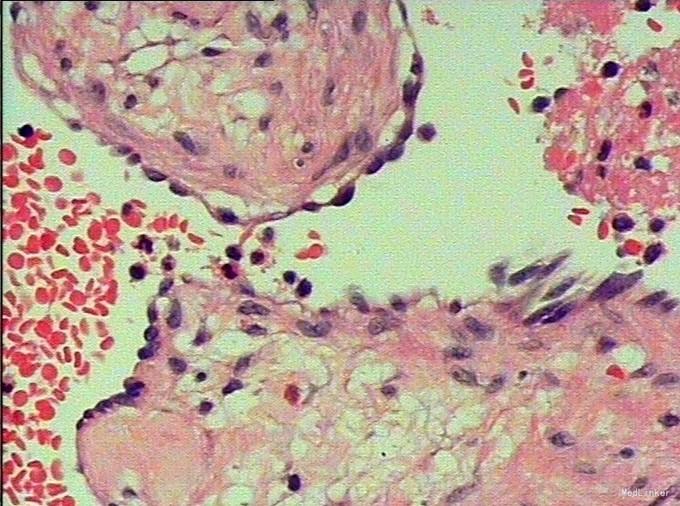 肝脏影像系列(八):肝海绵状血管瘤(最常见良性肿瘤)