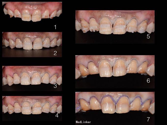 重度四环素牙釉质发育不全……瓷贴面修复